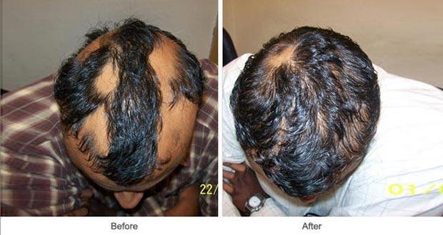 Patchy hair loss - homeopathy to the rescue!