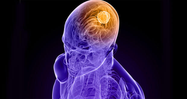 New non-invasive procedure that inhibits brain tumour growth