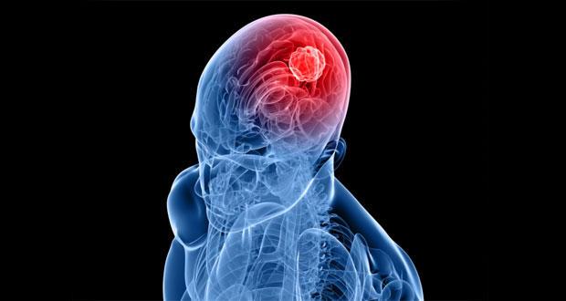 cancer-brain