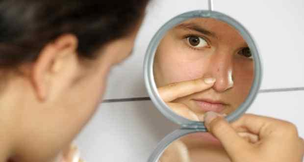 Experts tell you how to beat acne
