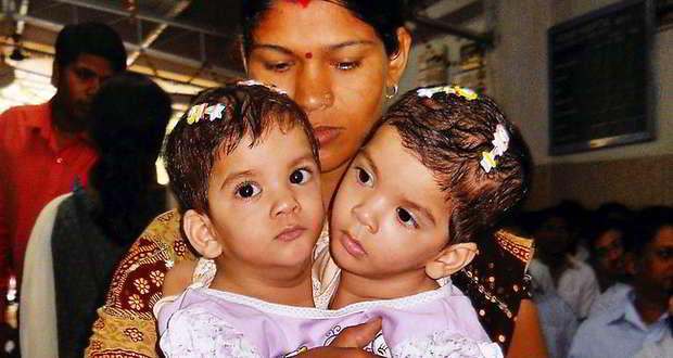 Betul's conjoined twins: Aradhana passes away after heart attack