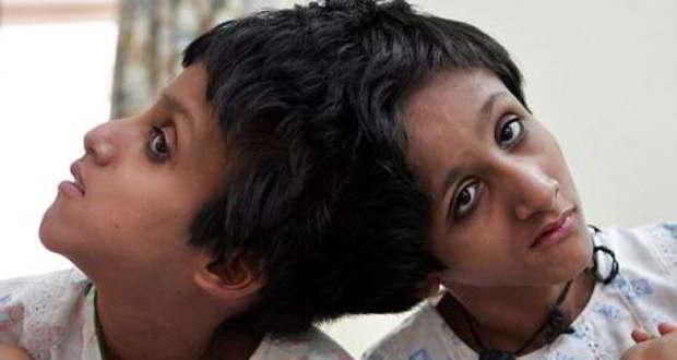 bihar's conjoined twins