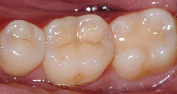 Composite resin - the white dental filling material