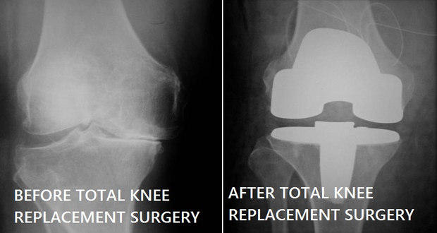Total Knee Replacement: Common queries answered