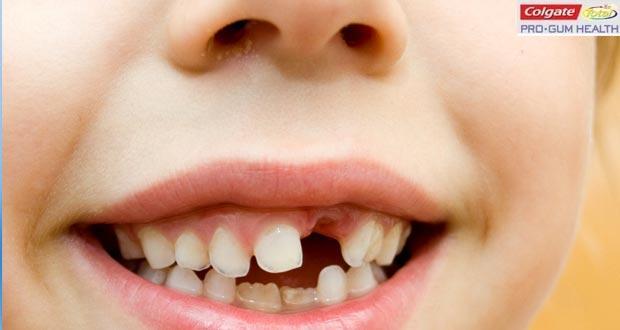 How crooked teeth may cause gum disease