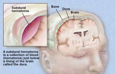 Hrithik Roshan brain surgery: What is chronic subdural haematoma?