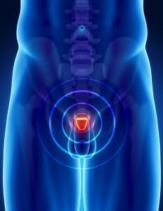 Prostate-Gland