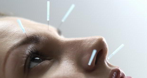 Acupuncture - 10 facts you should know about this ancient Chinese healing technique