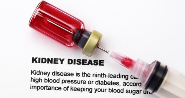 Kidney disease tests