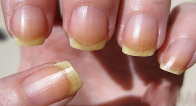Top 10 Reasons For Brittle And Deformed Nails Thehealthsite Com