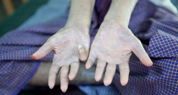 Anti-leprosy vaccine creator Jacinto Convit dies
