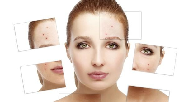 Tips to get rid of pimples