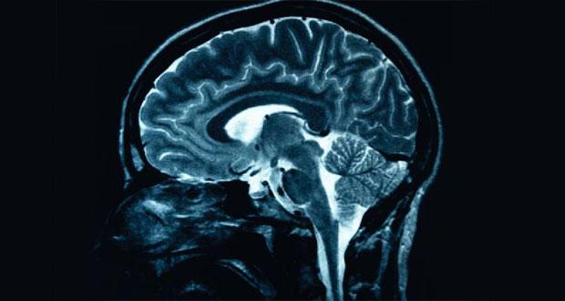 brain-scan