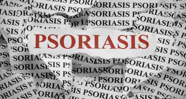 Natural remedies for psoriasis