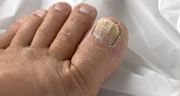 Top 5 home remedies for toenail fungus | TheHealthSite.com