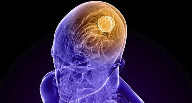 Combination of drugs can KILL brain cancer: Study