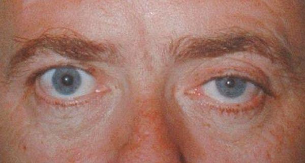 Pupil abnormalities