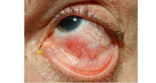 Retinal inflammation