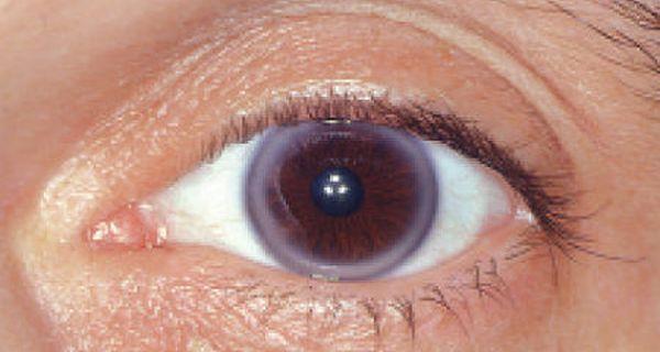 Rings around cornea
