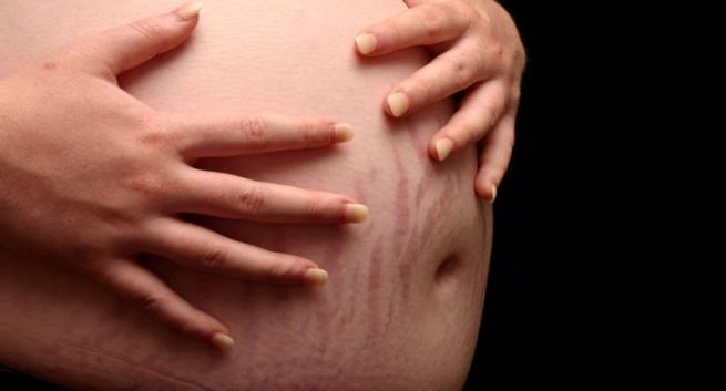 Here's how to prevent stretch marks during pregnancy