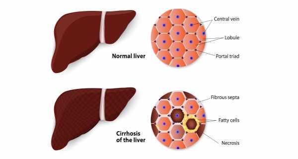 cirrhosis symptoms | cirrhosis treatment & causes | cirrhosis diet, Human Body