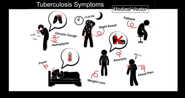 the signs symptoms and treatment of tuberculosis Learn about the symptoms of and treatments for tuberculosis.