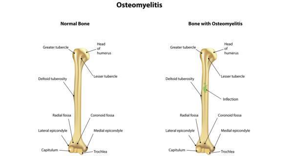 Osteomyelitis And Health Health Tips Osteomyelitis And