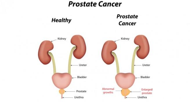 symptoms of prostate cancer spreading