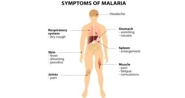 symptoms of malaria