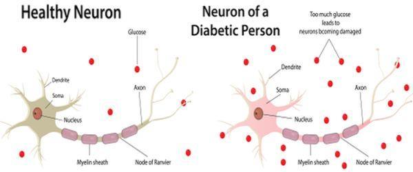 diabetic neuropathy disease