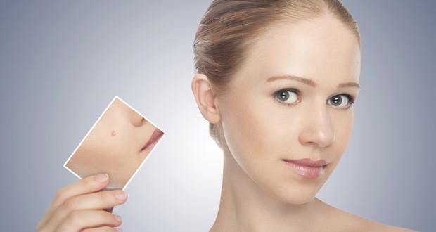 Wp content uploads 2016 04 acne scar removal multani mitti pack