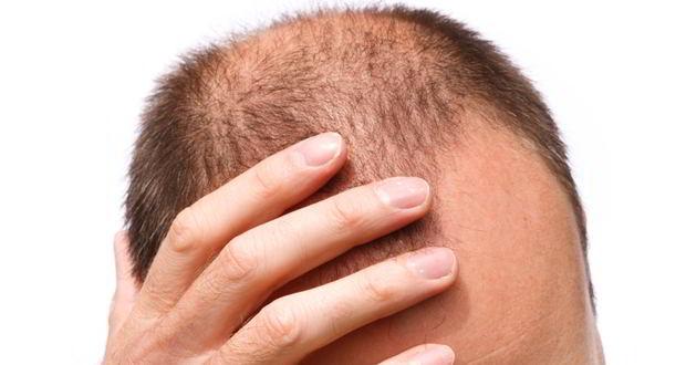 Wp content uploads 2016 04 balding