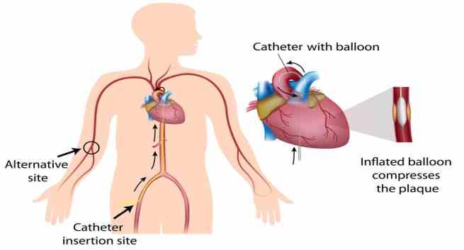 regenon a weight loss heart stent