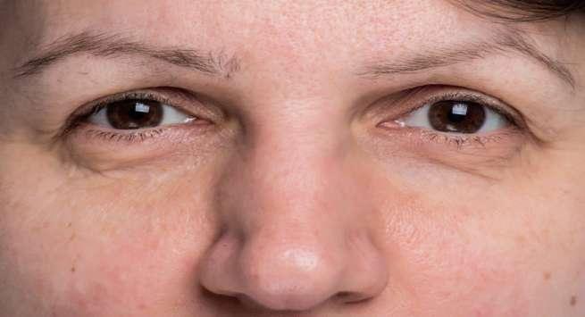 8 Reasons For Eyebrows Thinning Or Eyebrow Hair Loss