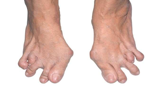 Natural Remedies Arthritis Hands