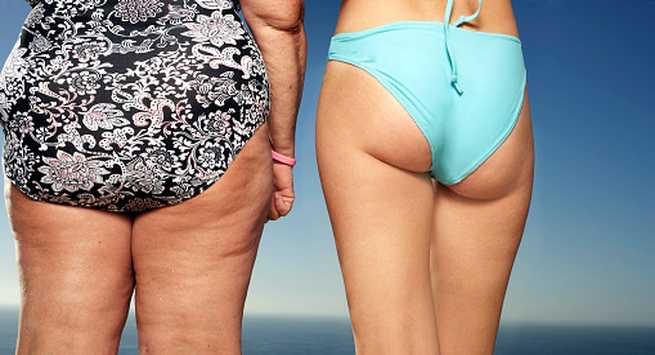 Reasons you put on weight on your buttocks
