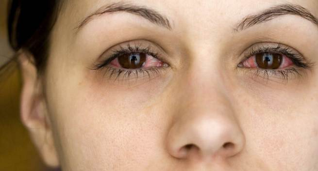Conjunctivitis home remedies for conjunctivitis or pink eye