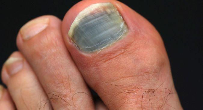 इन 4 कारणों से काले हो जाते हैं आपके पैर के नाखून