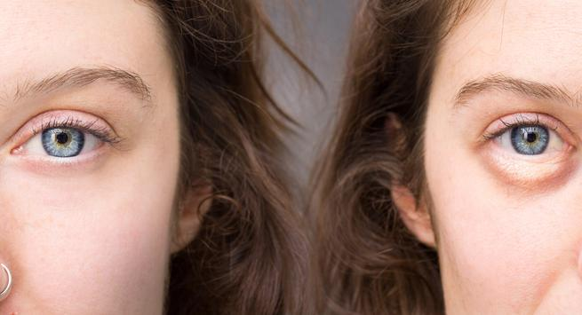 Puffy eyes, pale skin, +3 other visible signs of mineral and