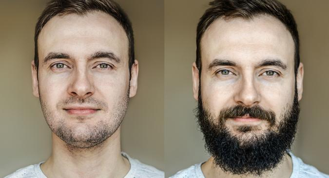 All You Need To Know About Facial Hair Transplants Or