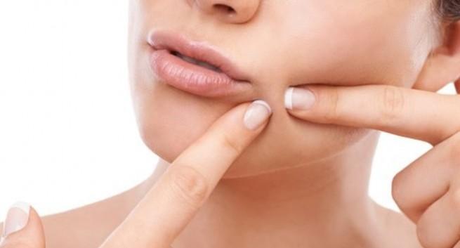 Pimple in marathi 655x353