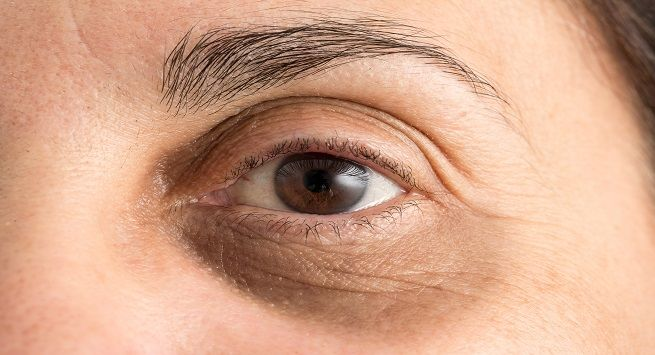 Home remedies that help you get rid of dark circles