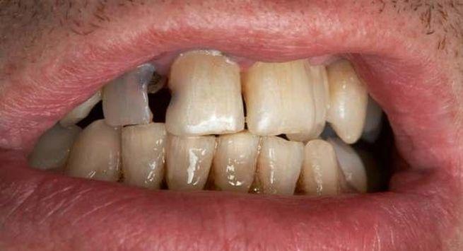 Oral cancer risk in india 1