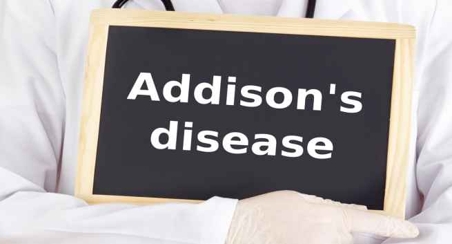 Addisons disease