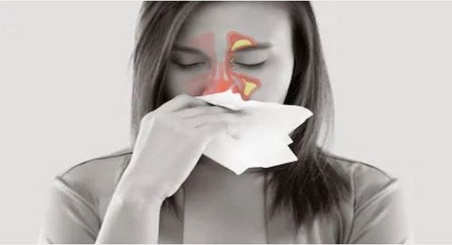 Home remedies of sinusitis