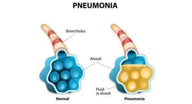 Pneumonia1  1