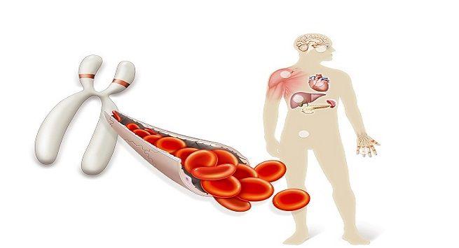 Prevents Hemochromatosis