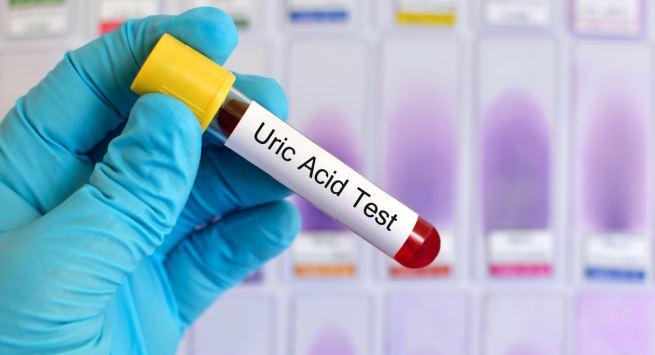 Regular test of uric acid prevent the risk of arthritis