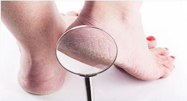 Tips to take care of cracked heels