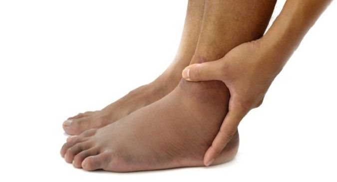 Diabetes Know How To Get Rid Of Swollen Feet Naturally